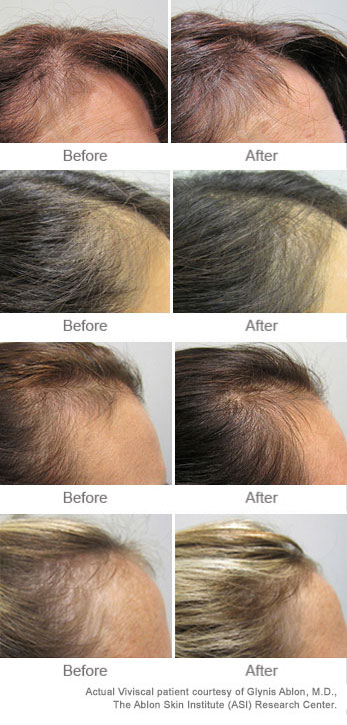 Viviscal before and after result pictures showing hair regrowth