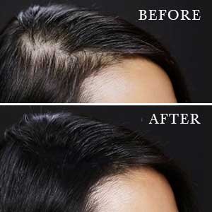 Toppik Reviews - How Well Does It Work for Thinning Hair?