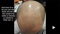 onion juice hair growth result before and after