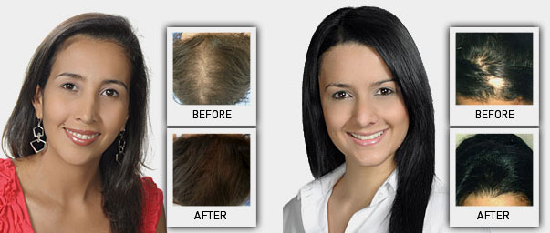 biologix hair restoration pictures