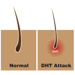 dht hair loss for women