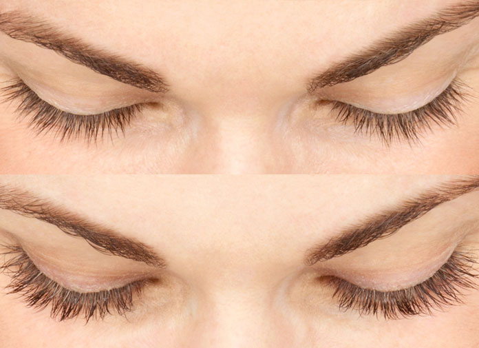 Doctor Prescibes An Eyelash Enhancer For Hair Growth
