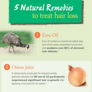 Infographic: 5 Natural Home Remedies to Treat Hair Loss