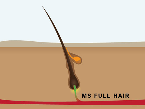 Infographic: Hair Follicle Structure