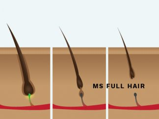 Infographic: Hair Growth Cycle