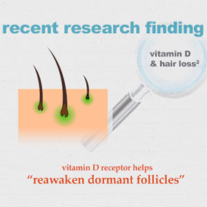 Infographic: Vitamin D and Hair Loss Research Finding