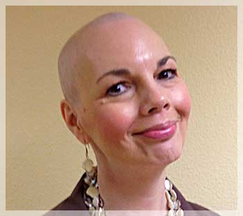 hair loss after chemo photo image