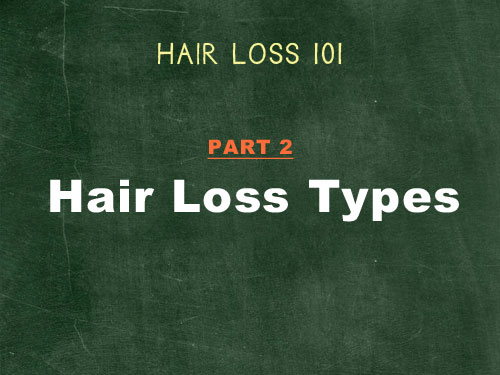 hair loss 101 hair loss types