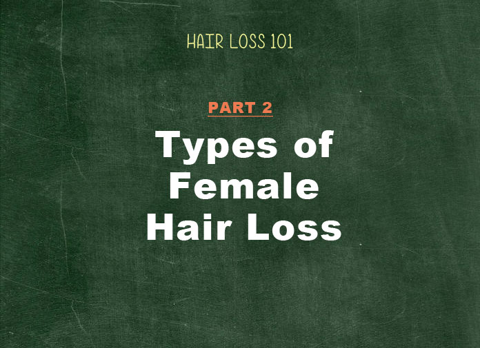 types of female hair loss patterns