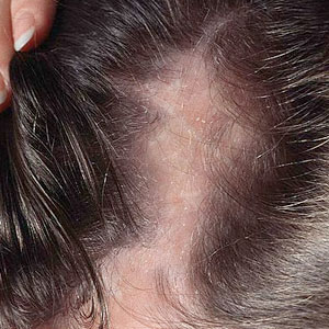 What causes hair loss? 10 most common reasons of Alopecia