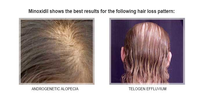 minoxidil and female hair loss pattern