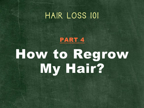 The Ultimate Guide to Hair Loss Treatment