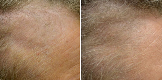 rogaine for women before and after pictures side