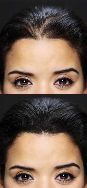 toppik reviews before and after pictures thinning on top