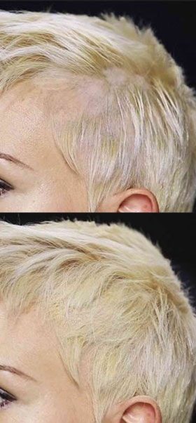 toppik reviews before and after pictures thinning side blonde