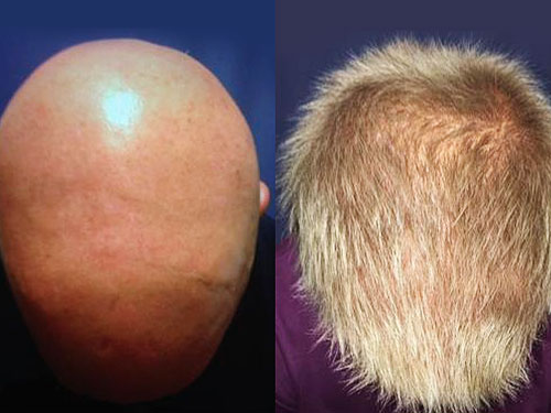 Study Reveals JAK Inhibitors May Cure Alopecia Areata