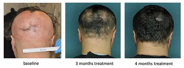 alopecia areata cure fda approved drug jak inhibitors