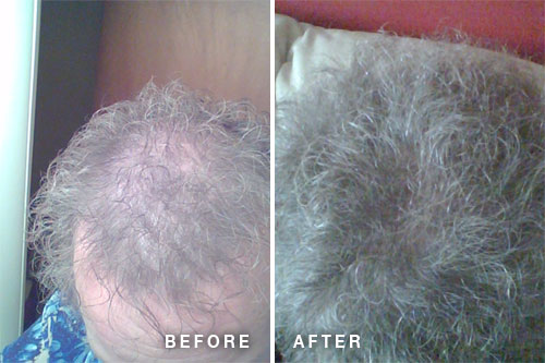 hair essentials hair loss improvement before and after photos
