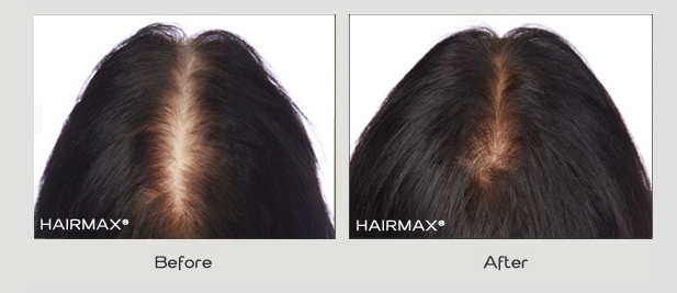 hairmax before and after photos