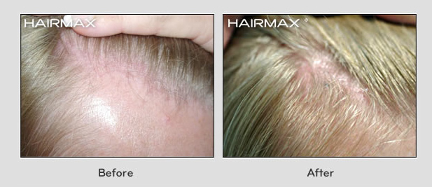 hairmax laser comb female hair regrowth result