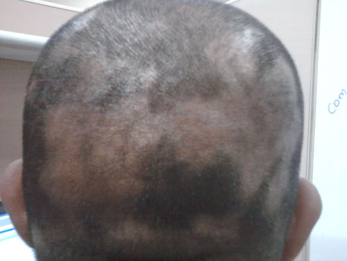 white iodine for hair loss alopecia areata regrowth