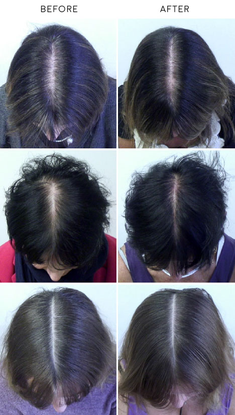 black currant oil hair loss growth before and after pictures