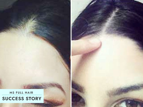 Success Story: How to Stop Receding Hairline and Regrow Hair
