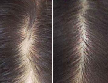 castor oil for hair before and after regrowth pictures