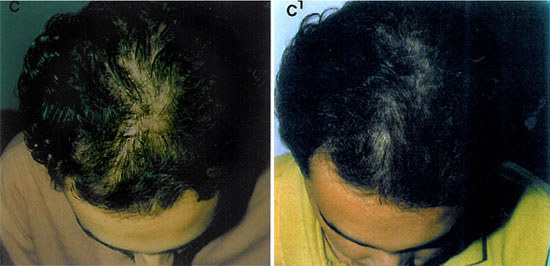 castor oil for hair growth before and after pictures results