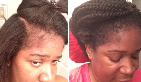 Jamaican black castor oil for hair loss before and after pictures