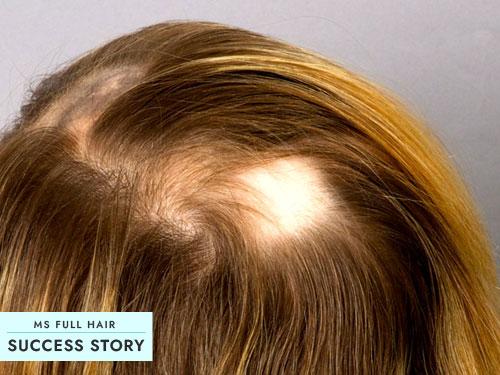 Alopecia Areata Success Story – Use This Natural Healing Method