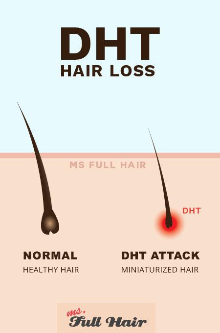 dht inositol alopecia hair loss
