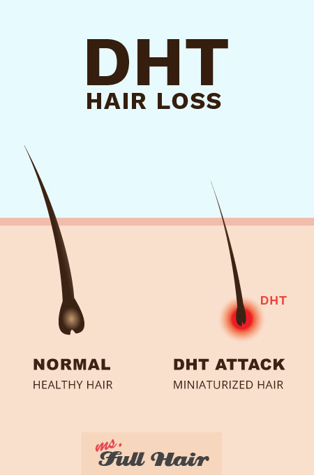 DHT Inositol alopecia hair loss
