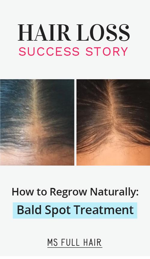 best bald spot treatment female natural hair loss remedy