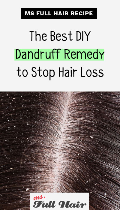 best diy severe dandruff remedy to stop hair loss