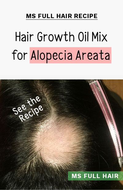 Hair growth essential oils mix for alopecia areata