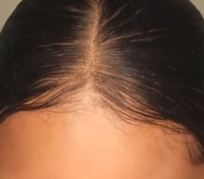 hair loss success story bald spot cure before and after photos