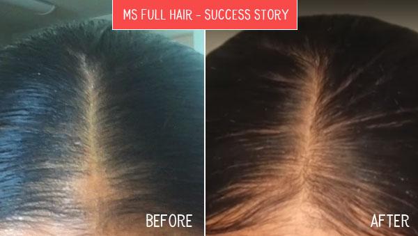hair loss success story best bald spot treatment natural remedy before after photos