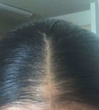 Hair loss success story best bald spot treatment natural remedy before photo