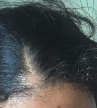 Hair loss success story best bald spot treatment natural remedy before photos