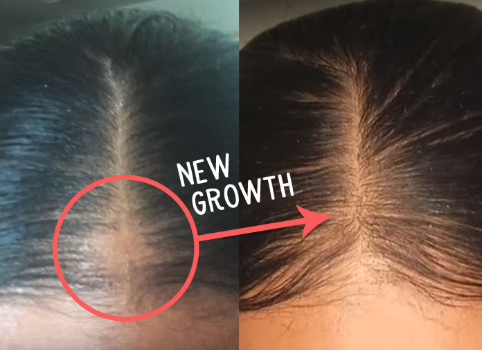 hair loss success story - best bald spot treatment natural remedy for female