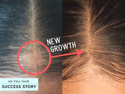 Hair Loss Success Story – The Best Bald Spot Treatment (Natural Remedy)