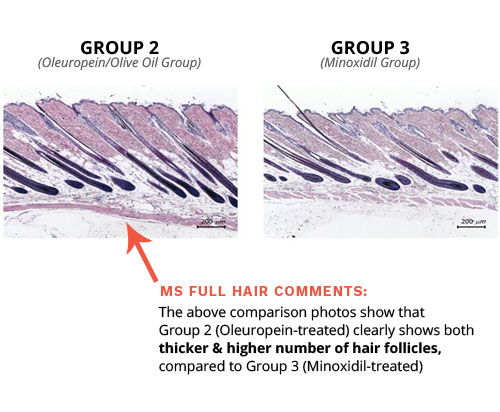 olive oil for hair loss minoxidil comparison