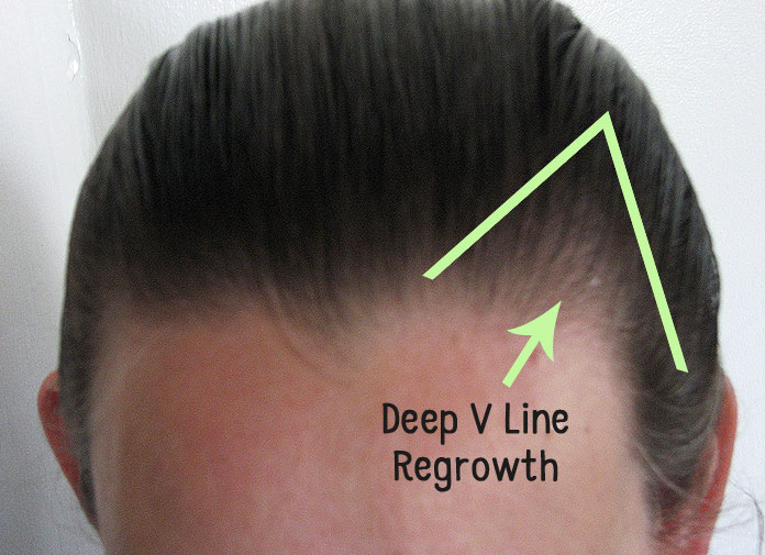 how to help receding hairline