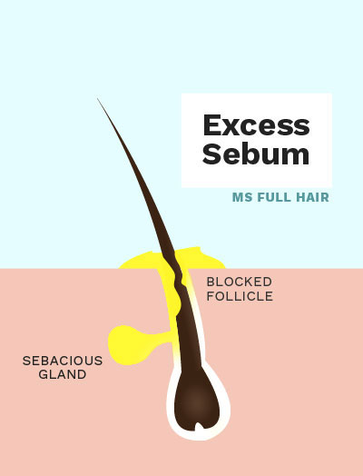 cedarwood essential oil for excess sebum hair loss