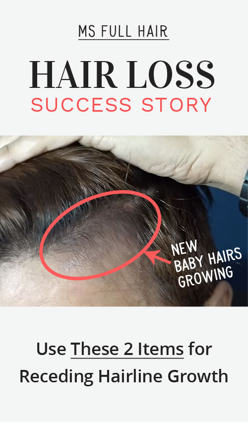 female receding hairline temples natural treatment