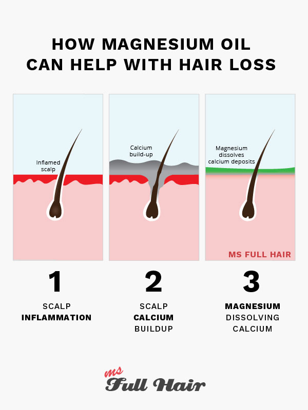 magnesium oil for hair growth