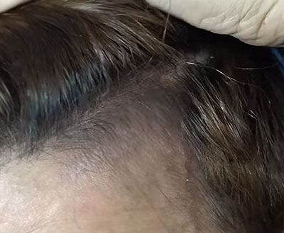 natural thinning hairline treatment after