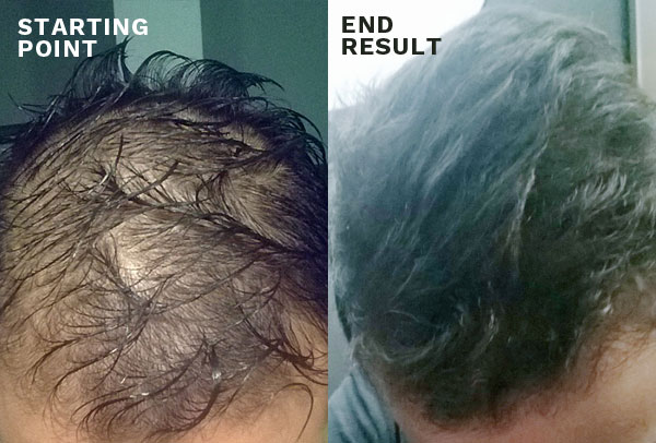 hair thickening products before and after photos