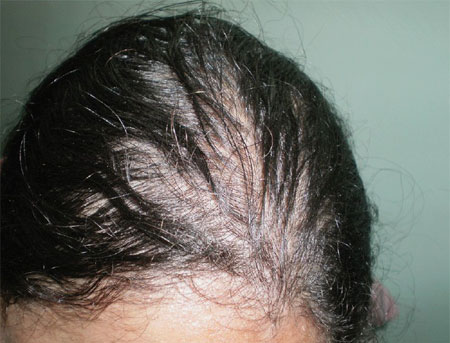 hypothyroidism thyroid hair loss pictures